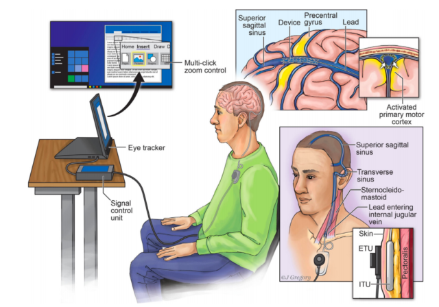 Thomas Oxley et al. / Journal of NeuroInterventional Surgery, 2020